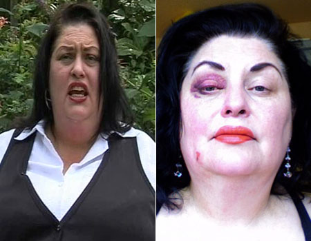 Bruising: victim Marsha